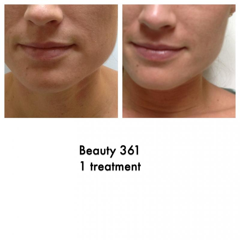 Beauty Redefined Medical Aesthetic Clinic Beauty 361
